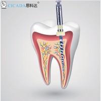 Профайлы CICADA Niti Endodontic files набор 04/10, 25 мм, 6 шт./упак.